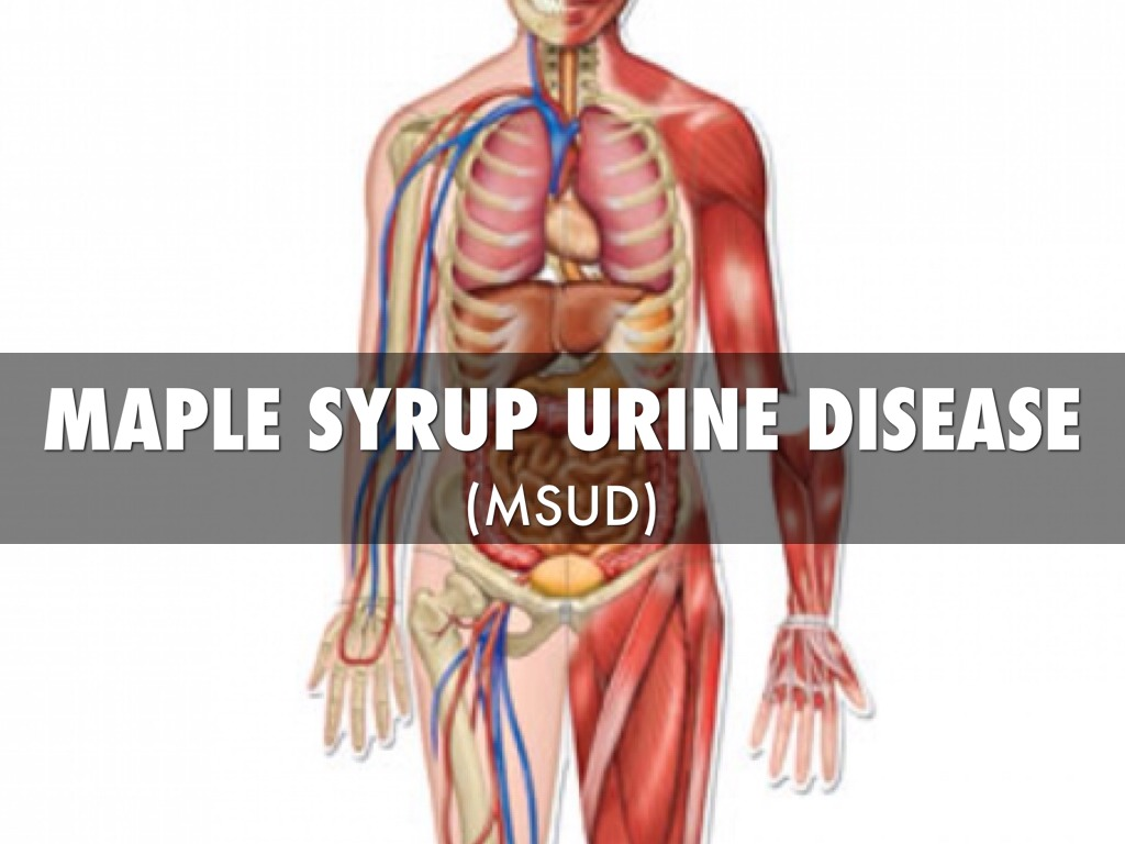 maple syrup urine disease research paper